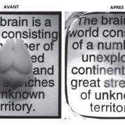 Une technique rend le cerveau transparent