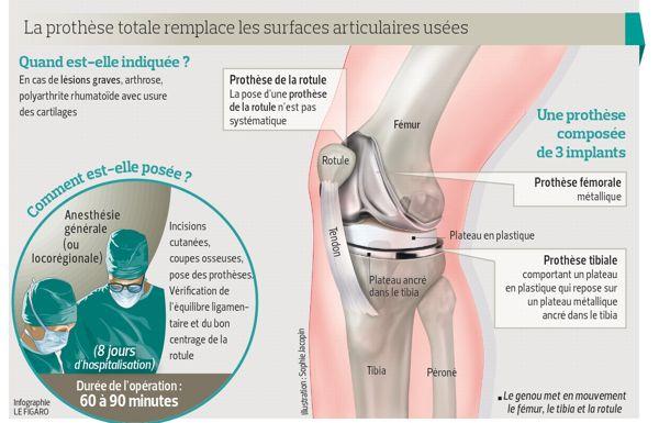 Prothèse de genou : la plupart des patients satisfaits | Actualité