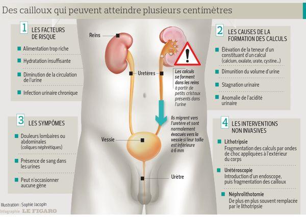 Calculs urinaires: douloureux mais sans lourdes conséquences | Actualité
