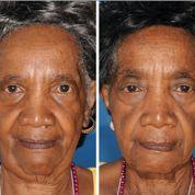 Le tabac accélère le vieillissement du visage