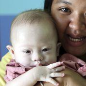 Gammy, le bébé qui sème le malaise sur la GPA