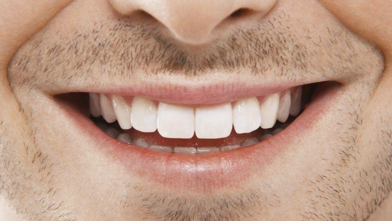 dents tachées par le café