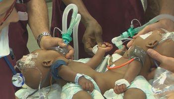 Les médecins s'activent autour de Hassan et Boubacar, au début de l'intervention chirurgicale.