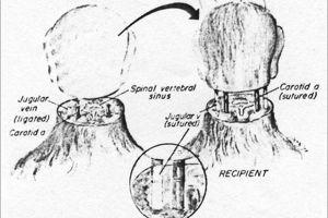 Dessin décrivant une greffe de tête chez le singe, telle que réalisée par le Dr White en 1970. (Crédit: White et al.)