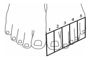 Notre gros orteil occupe deux blocs au lieu d'un, ce qui entraînerait un décalage  de notre perception des autres orteils. (Schéma: Cicmil et al, 2015)