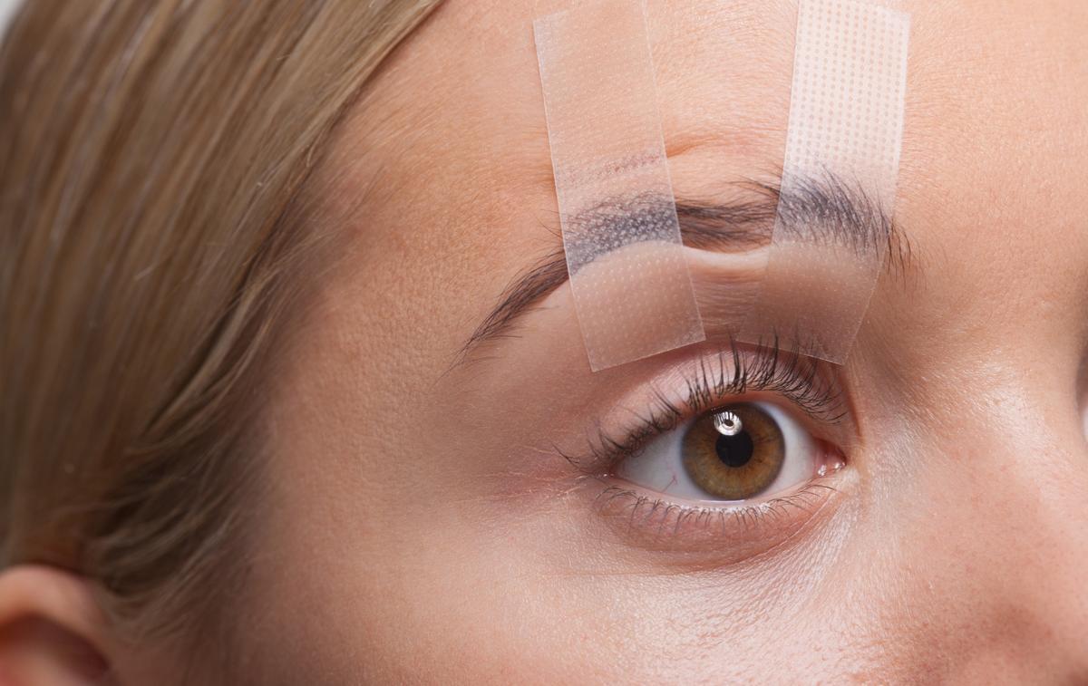 """Chirurgie des paupières : """"Je ne supportais plus mon regard fatigué"""""""