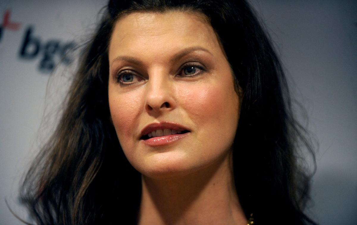 """Linda Evangelista affirme être """"défigurée à vie"""" en raison d'une intervention esthétique"""