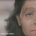 Reshma, défigurée, publie un tuto beauté pour dénoncer les attaques à l'acide
