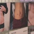 Un doc sur l'endométriose pour lever le tabou sur ce mal féminin
