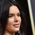 Lorde, Kendall Jenner, Kenza SMG... Quand l'acné s'affiche sur les réseaux sociaux