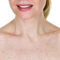 Les taches brunes, l'autre symptôme du vieillissement cutané ?