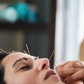 Les points d'acupuncture du visage à connaître