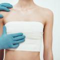 """Réduction mammaire avant/après : """"Ma poitrine me gênait pour dormir, m'habiller"""""""