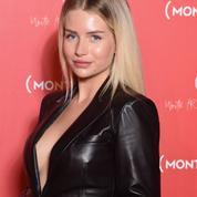 La demi-sœur de Kate Moss assume (et regrette) ses opérations de chirurgie esthétique