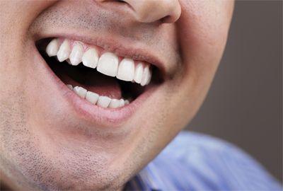 Implants Dentaires Souriez Vous Pouvez Reduire La Facture