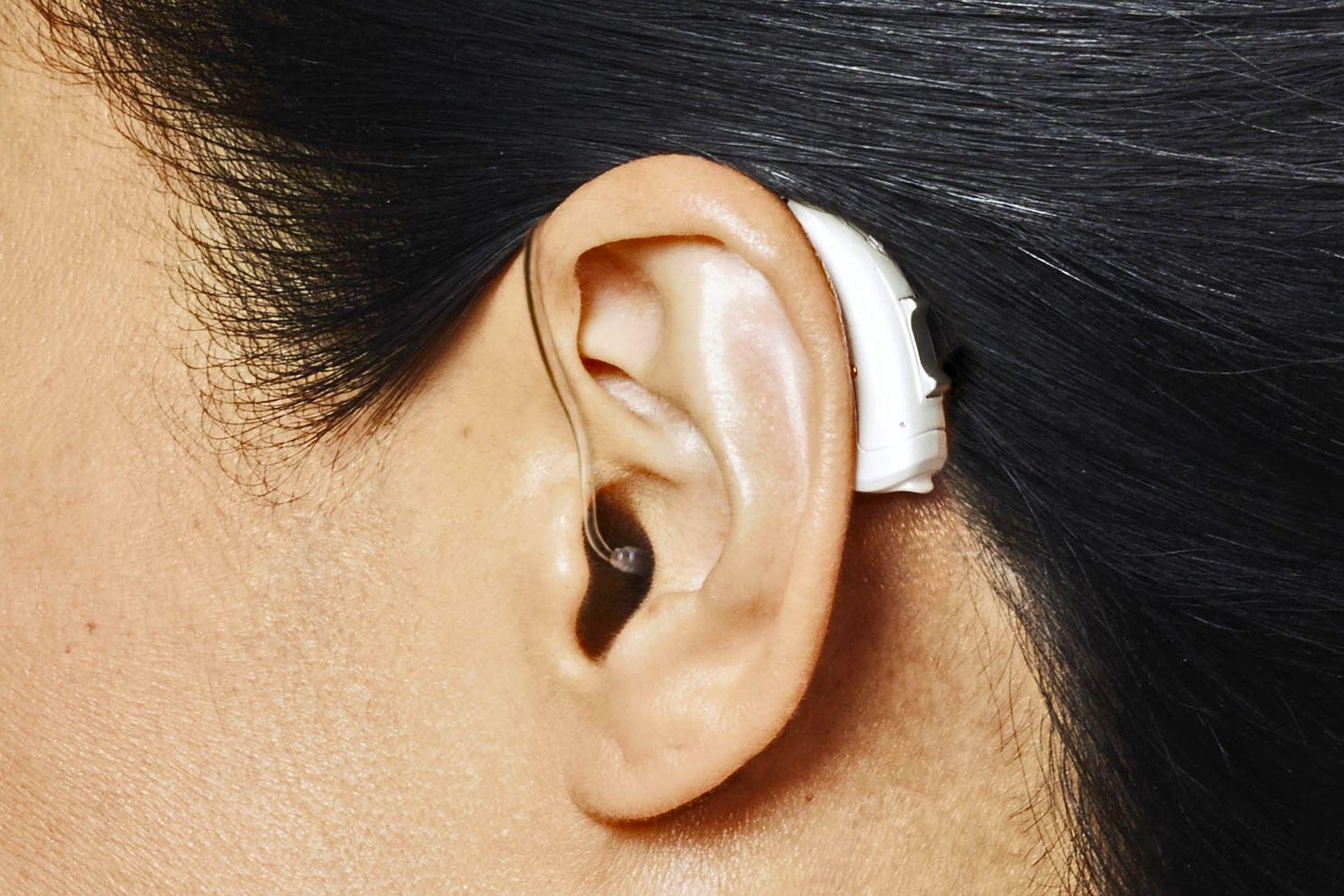 17517bef6dfd9e Prothèses auditives  enfin moins chères