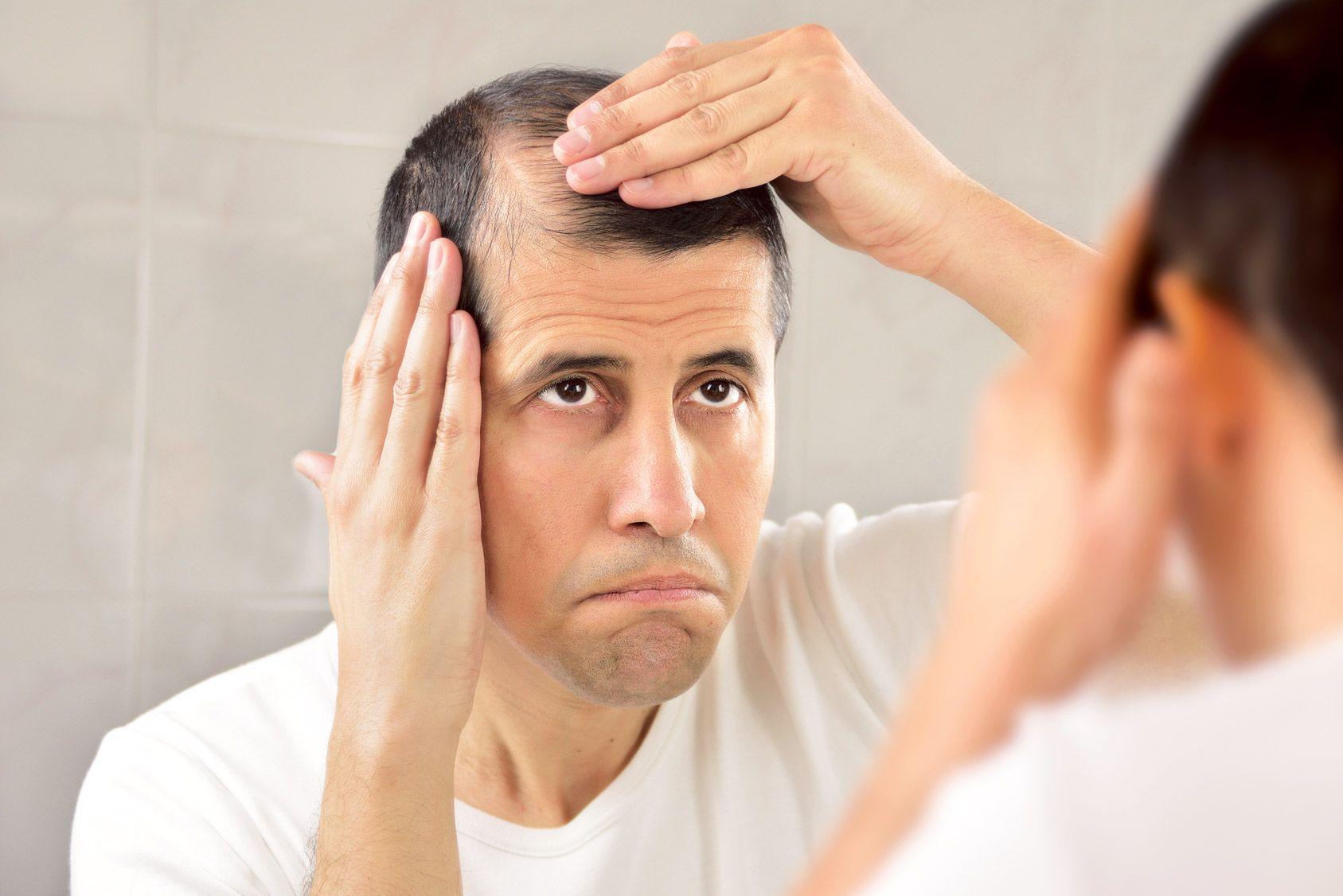 Vrai ou faux: alopécie, ne vous faites plus de cheveux!