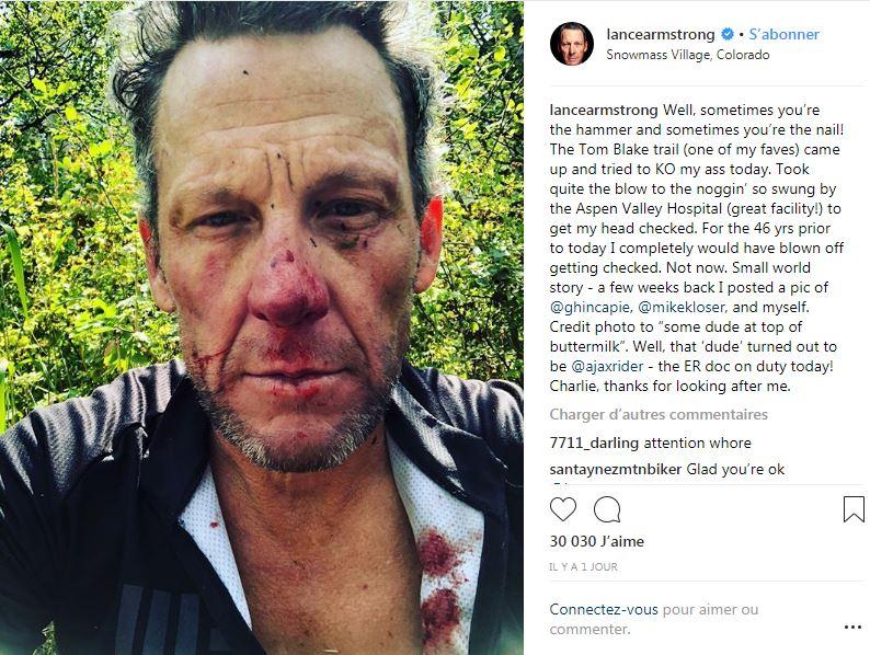 Cyclisme - Lance Armstrong le visage tuméfié et sanguinolent après une chute de vélo