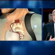 Cœur artificiel Carmat: le 2nd implanté a repris une vie normale explique Alain Ducardonnet